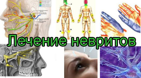 Лечение неврита нерва