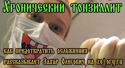 Методы лечения хронического тонзиллита