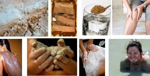 Лечение глиной заболевания суставов
