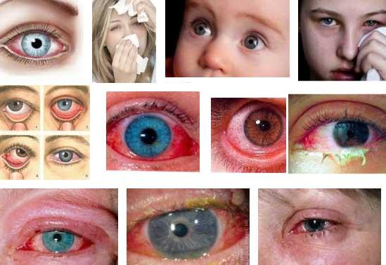 Попало в глаз чем лечить в домашних  36