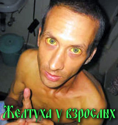 Человек с желтухой