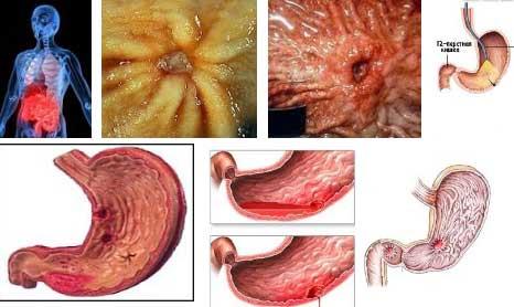 Как лечить язву желудка и двенадцатиперстной кишки