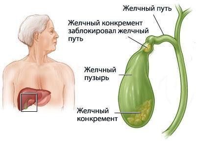 Желчнокаменная болезнь - лечение народными средствами