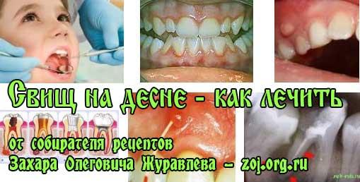 furatsilin-dlya-obrabotki-vaginalnogo-svisha