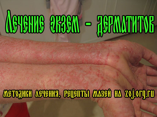 Лечение экземы на руках и ногах