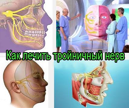 Как лечить тройничный нерв лица