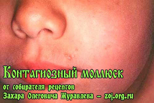 Контагиозный моллюск лечение