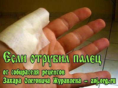 Что делать если отрубил оторвало палец