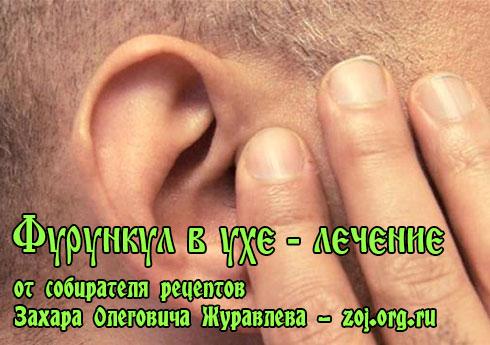 Чем лечить ухо в домашних условиях быстро  939