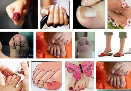 Как безболезненно лечить вросший ноготь