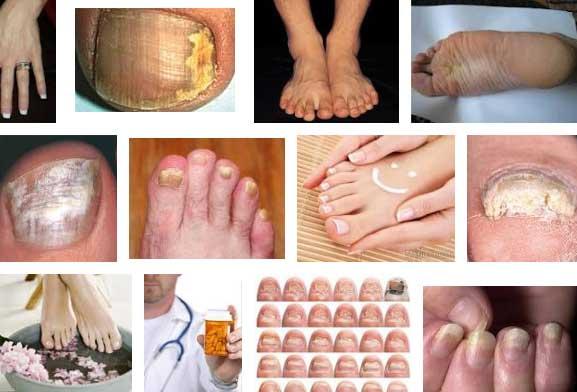Грибковое заболевание ногтей - как лечить