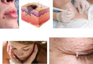 ВПЧ вирус папилломы человека - как лечить заболевание