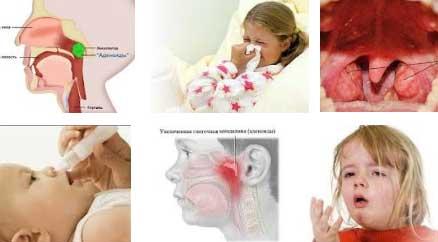 Как вылечить аденоиды в носу у ребенка