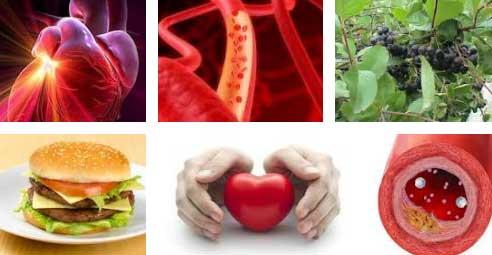 Лечение и профилактика атеросклероза