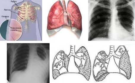 Плеврит легких - лечение