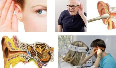 Нейросенсорная тугоухость - лечение