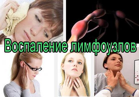 Лечение воспаления лимфоузлов