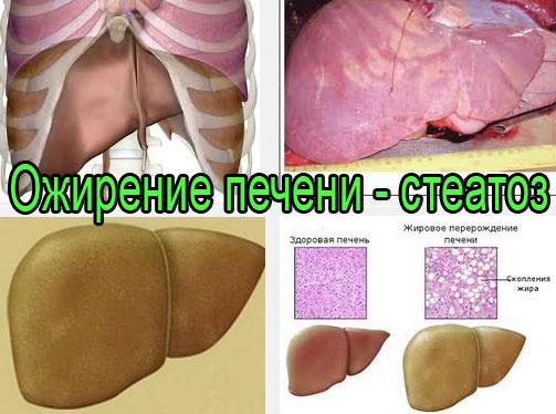Ожирение печени - стеатоз