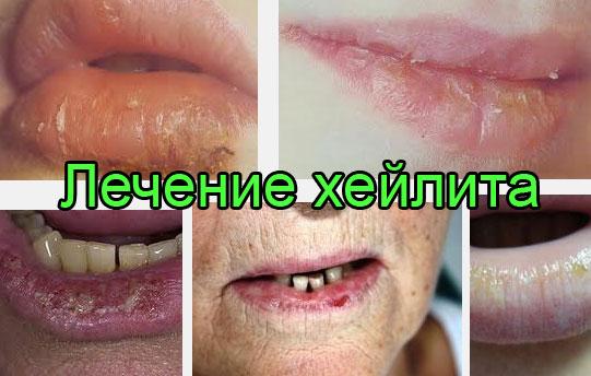 Лечение хейлита