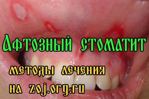 Афтозный стоматит - методы лечения