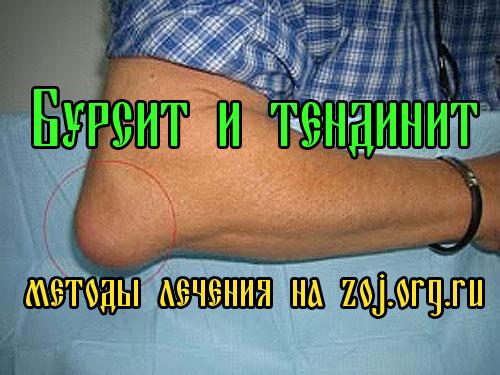 Бурсит и тендинит - лечение