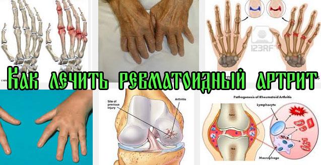 Как лечить ревматоидный артрит