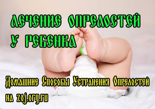 Лечение от опрелостей у детей в домашних условиях