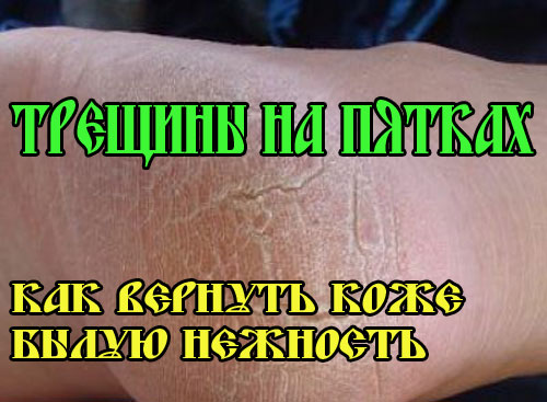 Трещины на пятках - лечение
