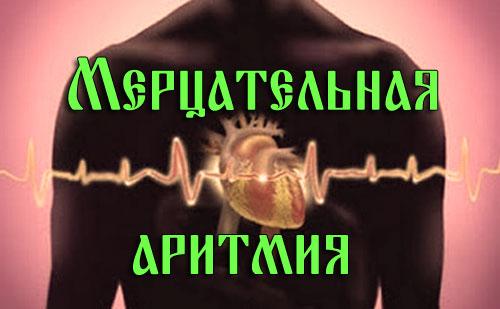 Мерцательная аритмия 2