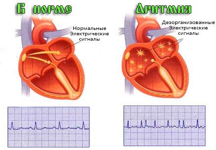 Мерцательная аритмия сердца 3