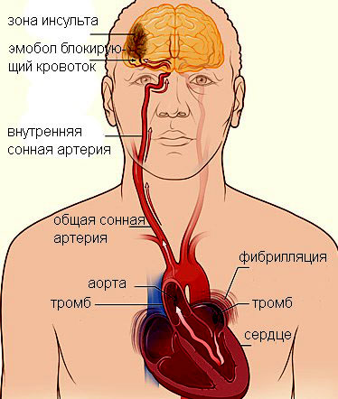 Тромбообразование при аритмии 4