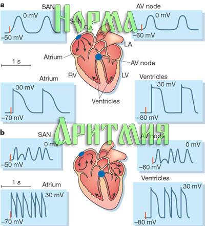 Аритмия на ЭКГ 5