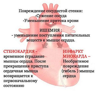 Поражения сердца