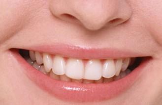 Улыбка и здоровые зубы