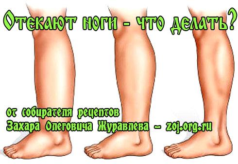 Из сустава ноги течет лимфа, как лечить если болят суставы что делать