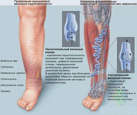 фото лимфы на ногах