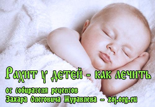 Рахит у детей - симптомы и лечение