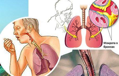 Трахеит без кашля симптомы и лечение что