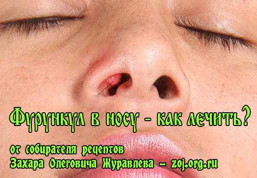 фурункул внутри в носу - как лечить